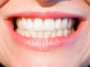 denti bianchi e puliti