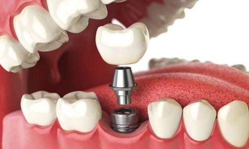 qualità dei materiali in implantologia